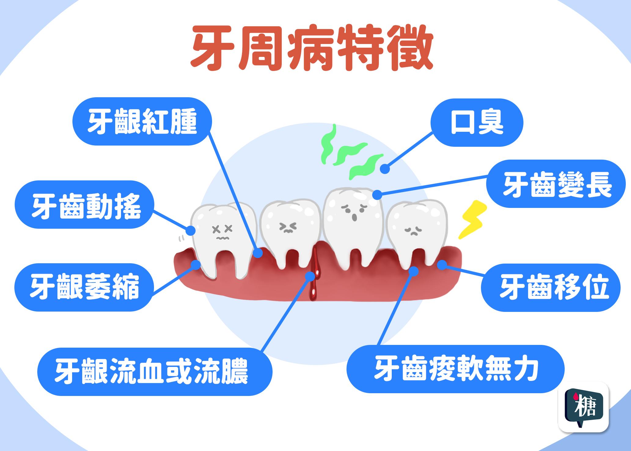 糖友口臭、牙齦腫,小心牙周病找上門!牙周病的病徵